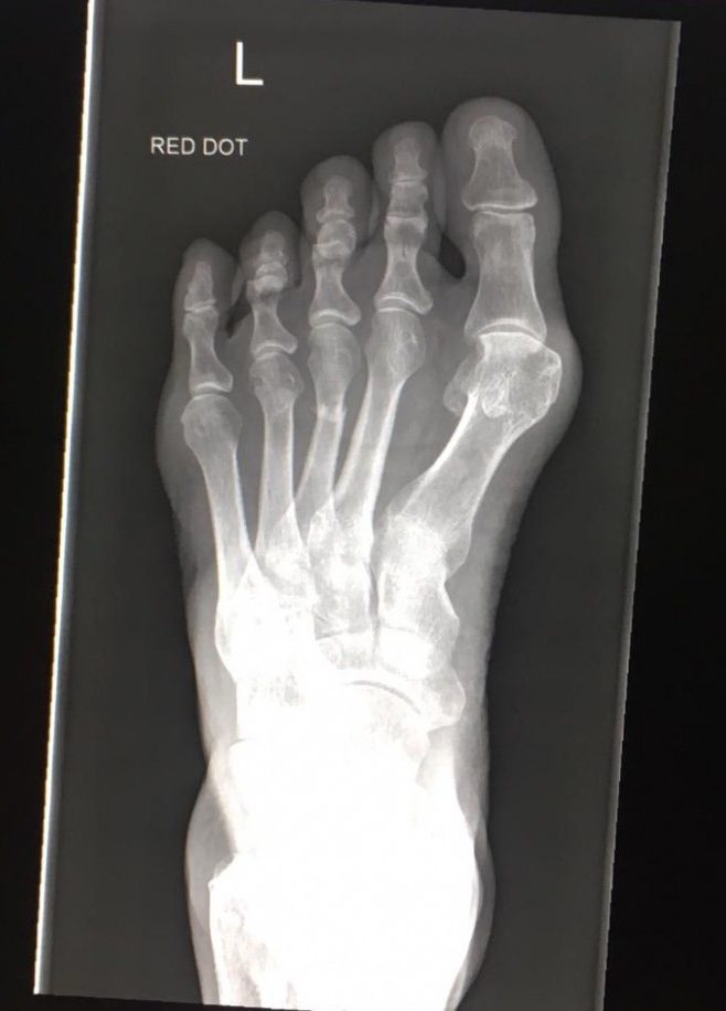 The wintergarten broken foot x-ray in our magic act